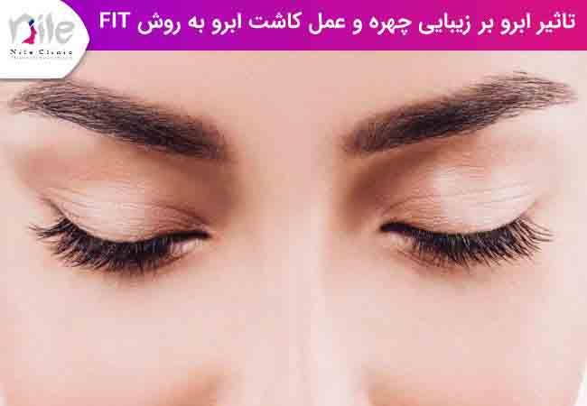 تاثیر ابرو بر زیبایی چهره و عمل کاشت ابرو به روش fit