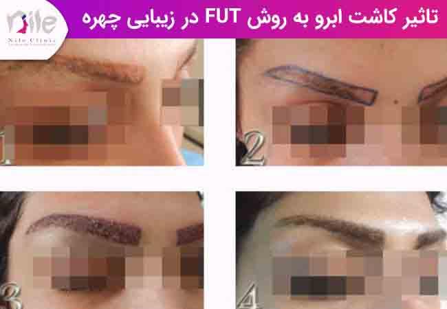 تاثیر کاشت ابرو به روش FUT در زیبایی چهره