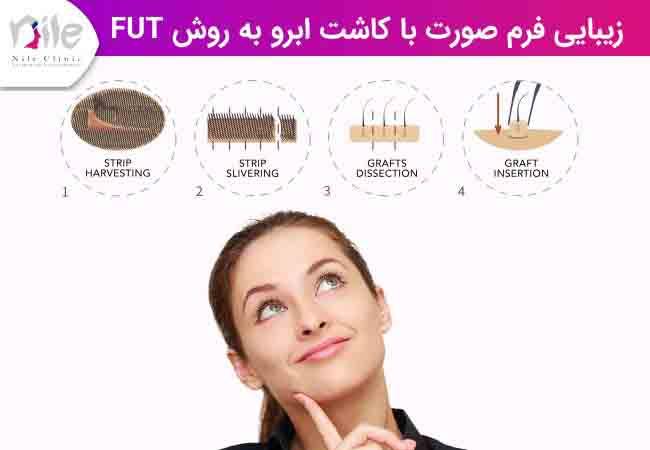 زیبایی فرم صورت با کاشت ابرو به روش FUT