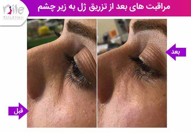 مراقبت های بعد از تزریق ژل به زیر چشم