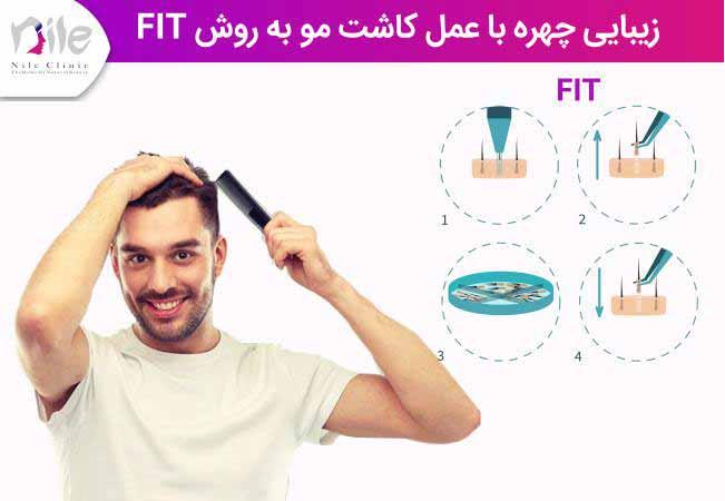 زیبایی چهره با عمل کاشت مو به روش fit