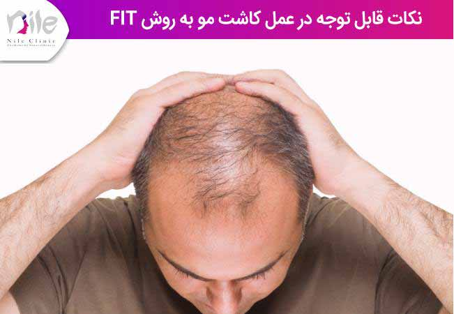 نکات قابل توجه در عمل کاشت مو به روش fit