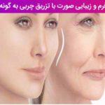 بهبود فرم و زیبایی صورت با تزریق چربی به گونه