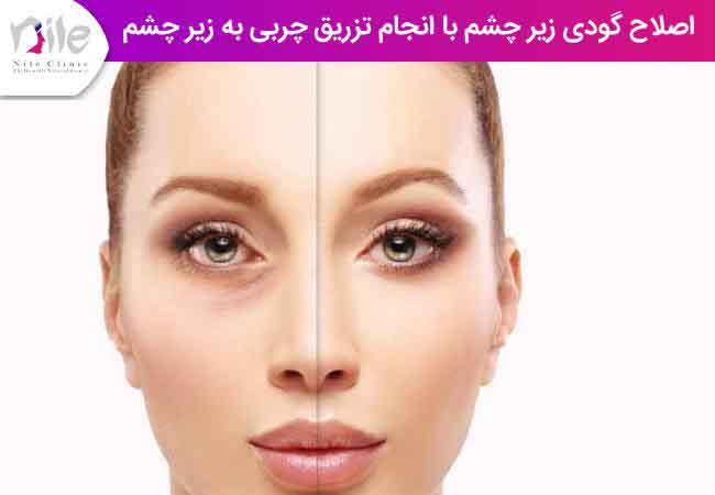 اصلاح گودی زیر چشم با انجام تزریق چربی به زیر چشم