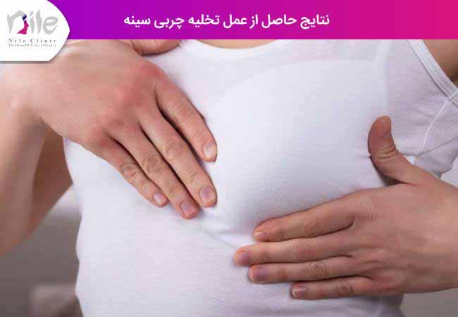 نتایج حاصل از عمل تخلیه چربی سینه