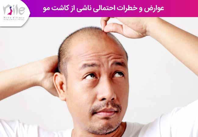 عوارض و خطرات احتمالی ناشی از کاشت مو