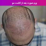 ورم صورت بعد از کاشت مو