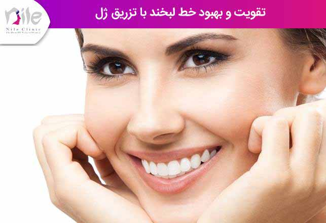 تقویت و بهبود خط لبخند با تزریق ژل