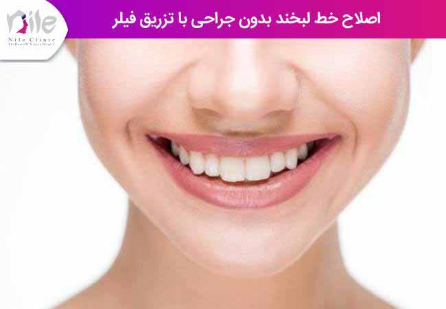 اصلاخ خط لبخند بدون جراحی با تزریق فیلر