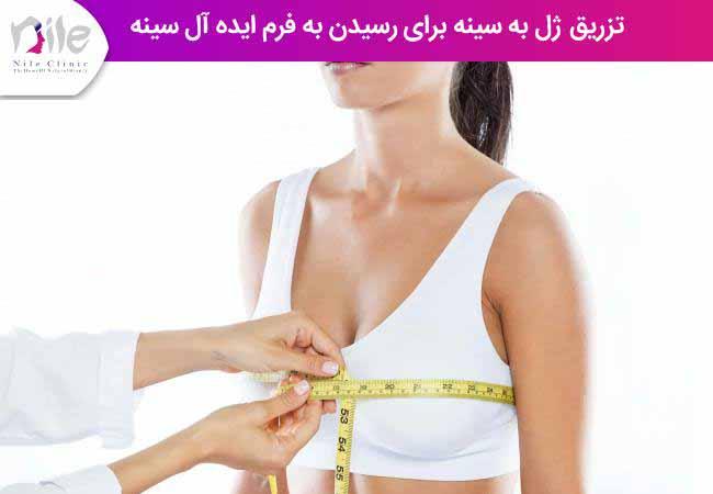 تزریق ژل به سینه برای رسیدن به فرم ایده آل سینه