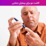 کاشت مو برای بیماران دیابتی