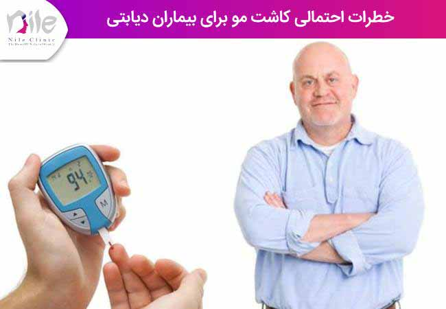 خطرات احتمالی کاشت مو برای بیماران دیابتی