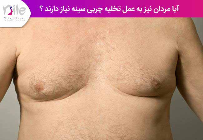 آیا مردان نیز به عمل تخلیه چربی سینه نیاز دارند ؟