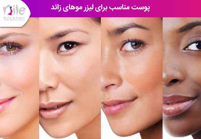پوست مناسب برای لیزر موهای زائد