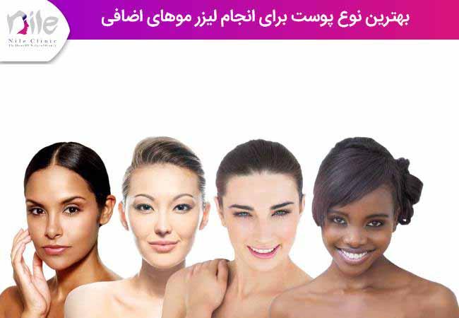 بهترین نوع پوست برای انجام لیزر موهای اضافی