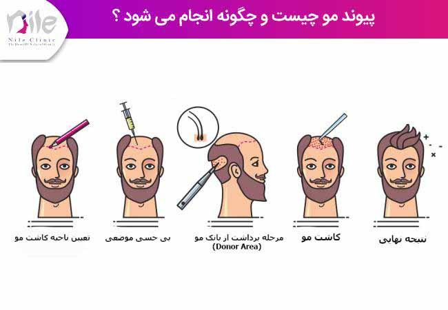 پیوند مو چیست و چگونه انجام می شود