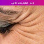درمان خطوط پنجه کلاغی
