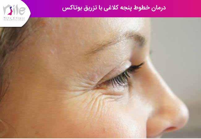 درمان خطوط پنجه کلاغی با تزریق بوتاکس