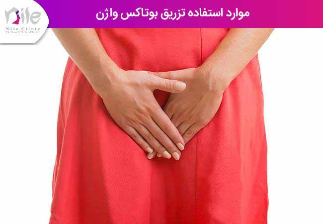 موارد استفاده تزریق بوتاکس واژن