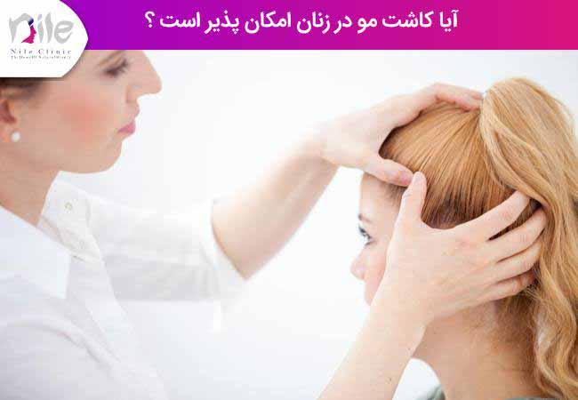 آیا کاشت مو در زنان امکان پذیر است ؟