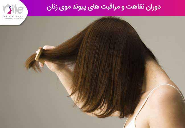 دوران نقاهت و مراقبت های پیوند موی زنان