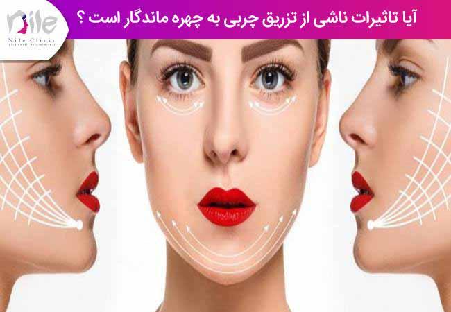 آیا تاثیرات ناشی از تزریق چربی به چهره ماندگار است ؟