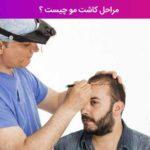 مراحل کاشت مو چیست ؟