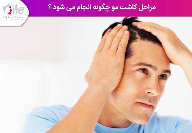 مراحل کاشت مو چگونه انجام می شود ؟