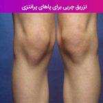 تزریق چربی برای پاهای پرانتزی