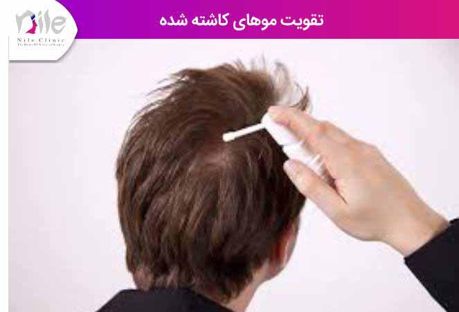 تقویت موهای کاشته شده