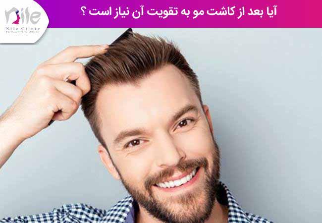آیا بعد از کاشت مو به تقویت آن نیاز است ؟
