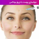 جوانسازی پوست با تزریق بوتاکس