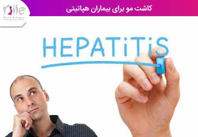 کاشت مو برای بیماران هپاتیتی