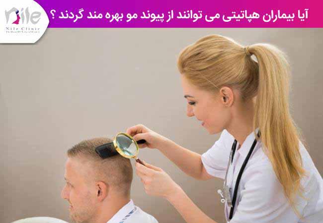 آیا بیماران هپاتیتی می توانند از پیوند مو بهره گیرند