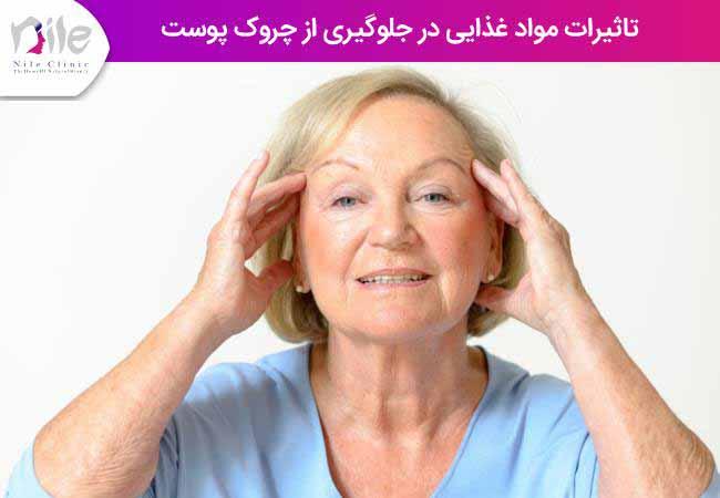 تاثیرات مواد غذایی در جلوگیری از چروک پوست