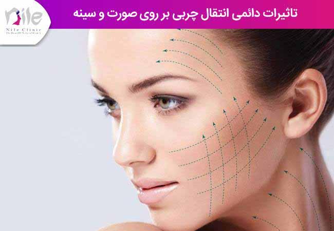 تاثیرات دائمی انتقال چربی بر روی صورت و سینه