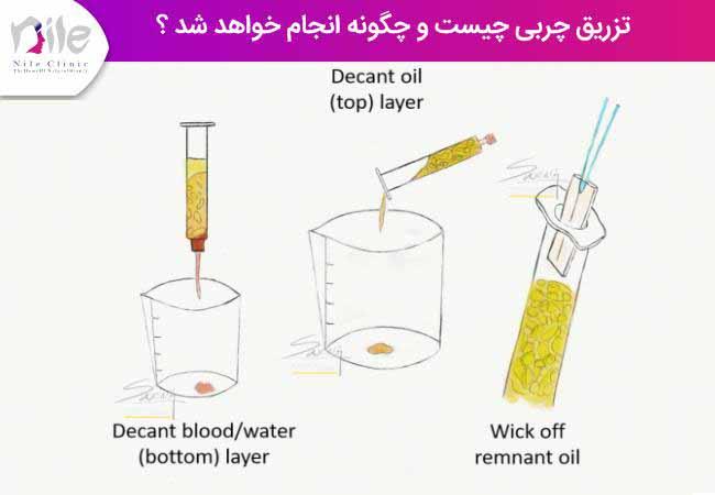 تزریق چربی چیست و چگونه انجام خواهد شد ؟