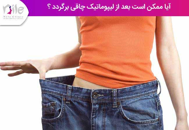 آیا ممکن است بعد از لیپوماتیک چاقی برگردد ؟