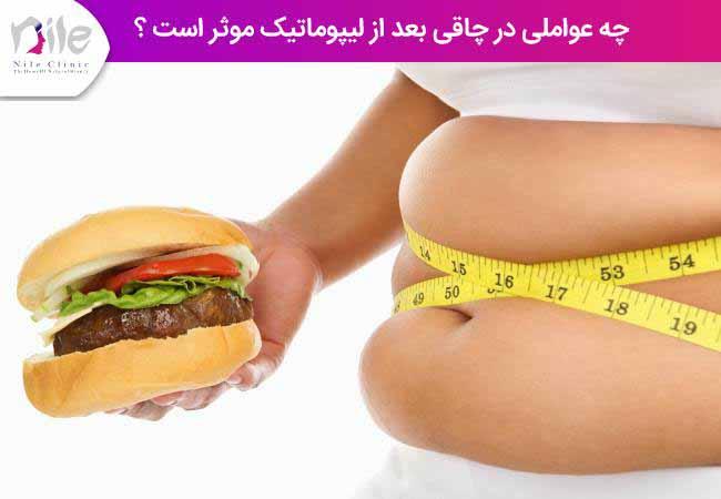 چه عواملی در چاقی بعد از لیپوماتیک موثر است ؟