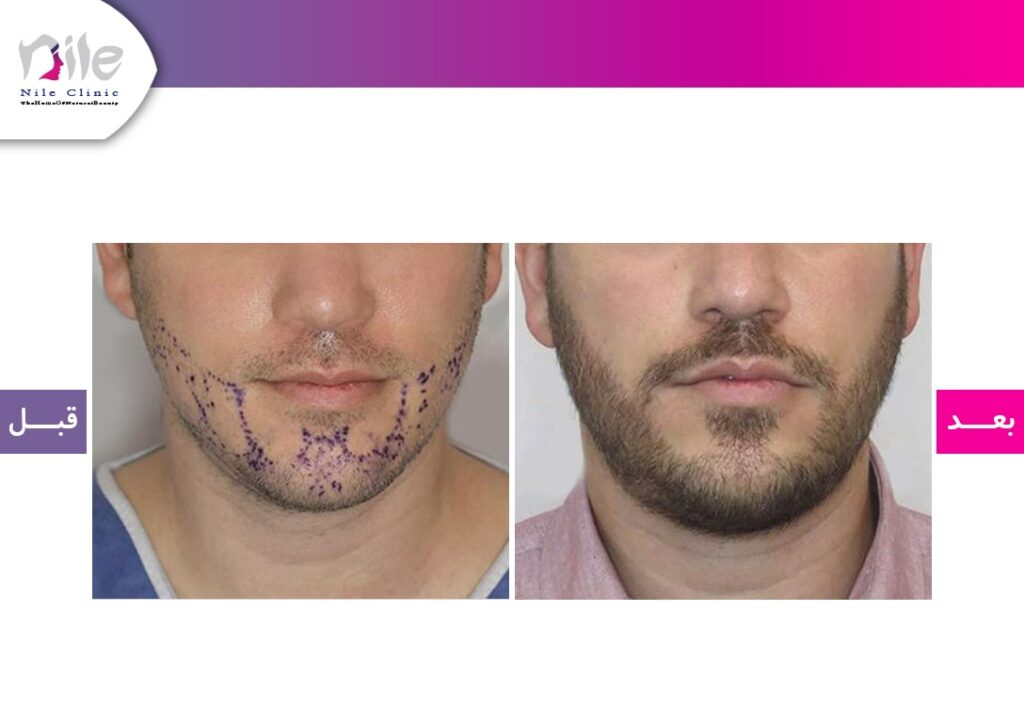 قبل و بعد از کاشت ریش