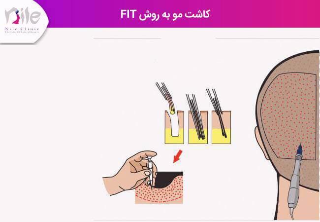 کاشت مو با fit