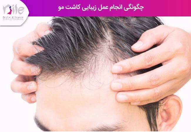 چگونگی انجام عمل زیبایی کاشت مو