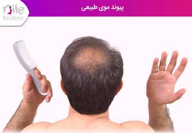 پیوند موی طبیعی و کاشت مو