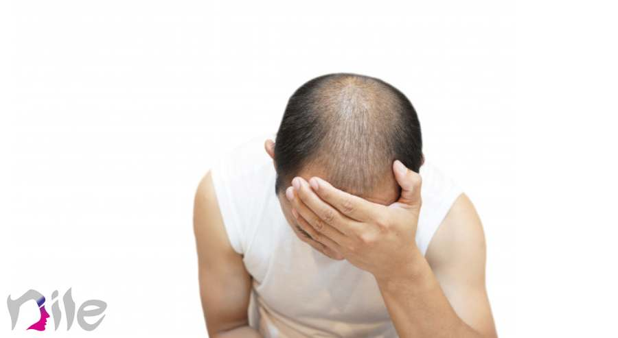 شامپو پس از کاشت مو