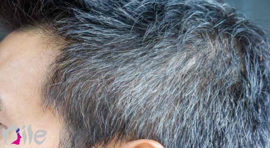 میزان رشد مو بعد از کاشت
