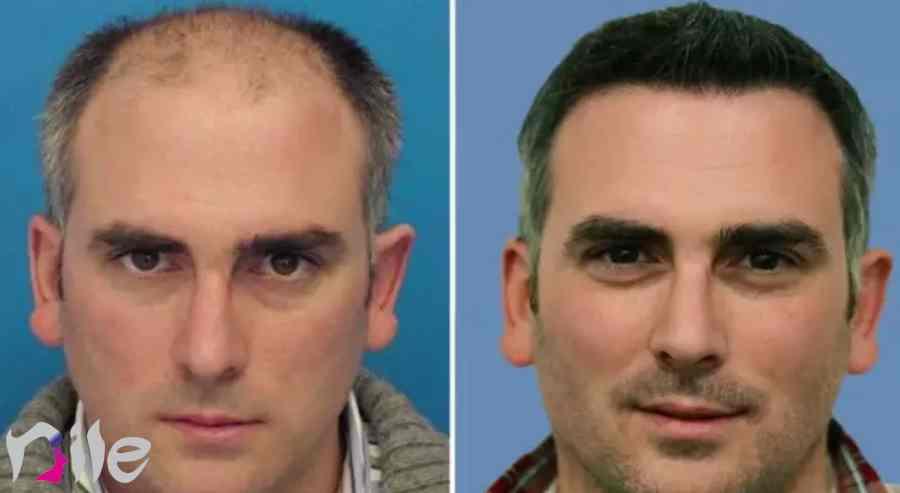 تفاوت فاحش بعد از روند رشد مو بعد از کاشت