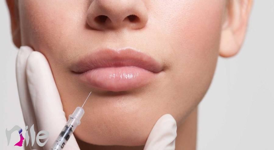 مراقبت های بعد از تزریق ژل به لب