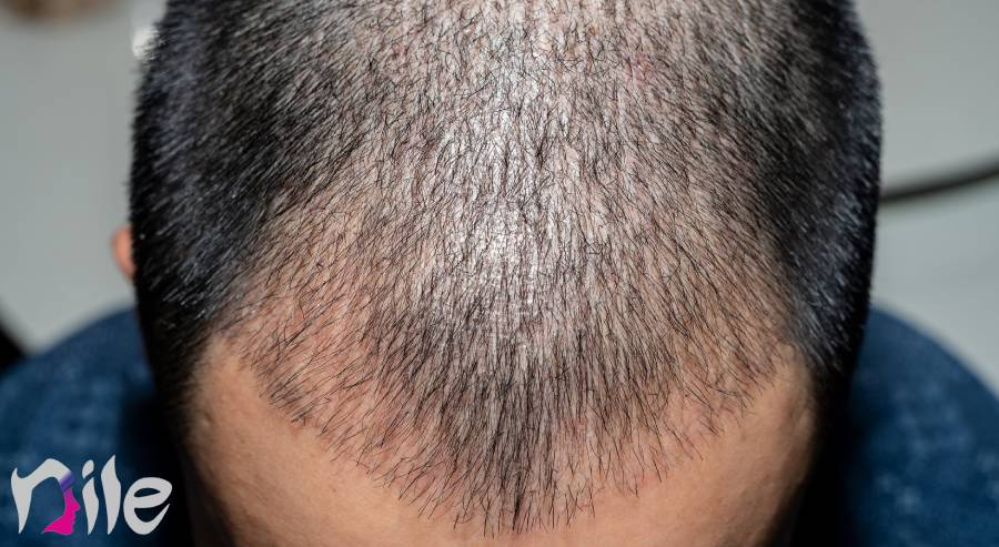 شستشو سر بعد از کاشت مو