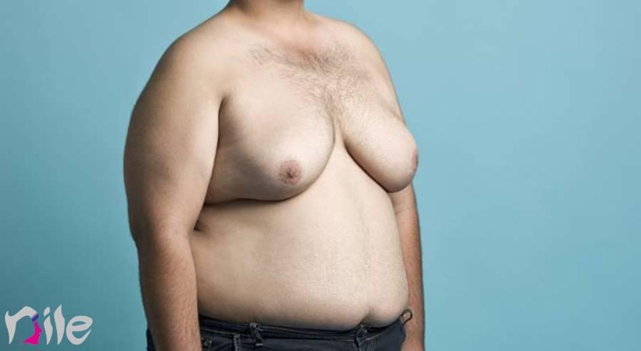 علت بزرگ شدن سینه مردان