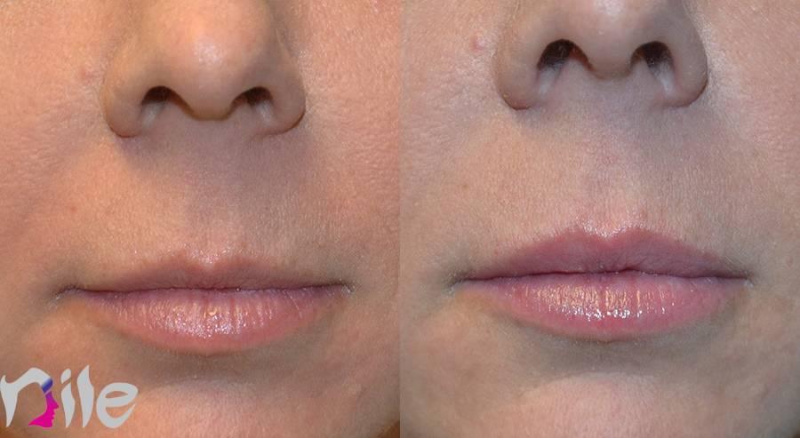 قبل و بعد از تزریق چربی در لب